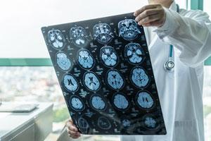 Portland Brain Injury Lawyer
